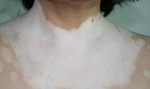 白癜风对女性病人有哪些危害