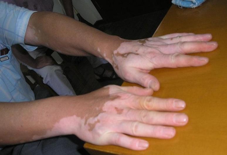 手部白癜风的诊断方法是哪些?